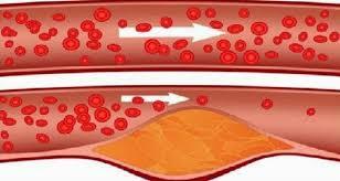 Запушени артерии